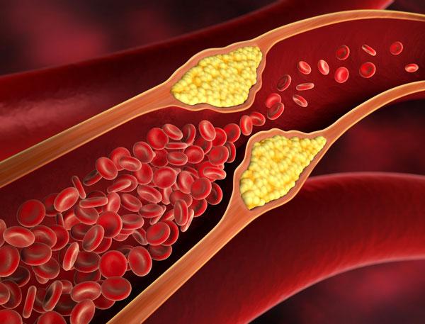 Homocystein – ein Risikofaktor für Arteriosklerose