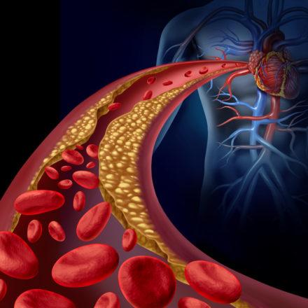 LDL-Cholesterin Zielwerte