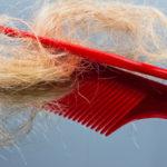 Welche Ursache hat Haarausfall ?
